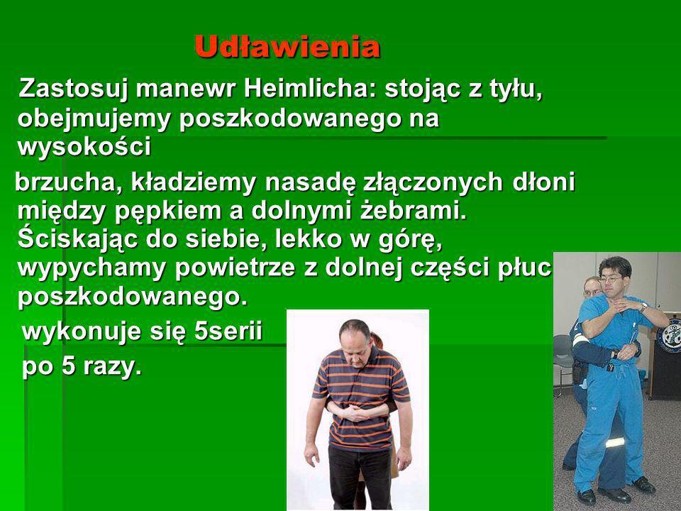 Udławienia Udławienia Zastosuj manewr Heimlicha: stojąc z tyłu, obejmujemy poszkodowanego na wysokości Zastosuj manewr Heimlicha: stojąc z tyłu, obejm