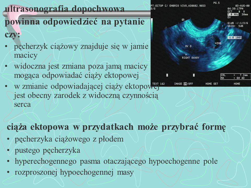 ultrasonografia dopochwowa powinna odpowiedzieć na pytanie czy: pęcherzyk ciążowy znajduje się w jamie macicy widoczna jest zmiana poza jamą macicy mo