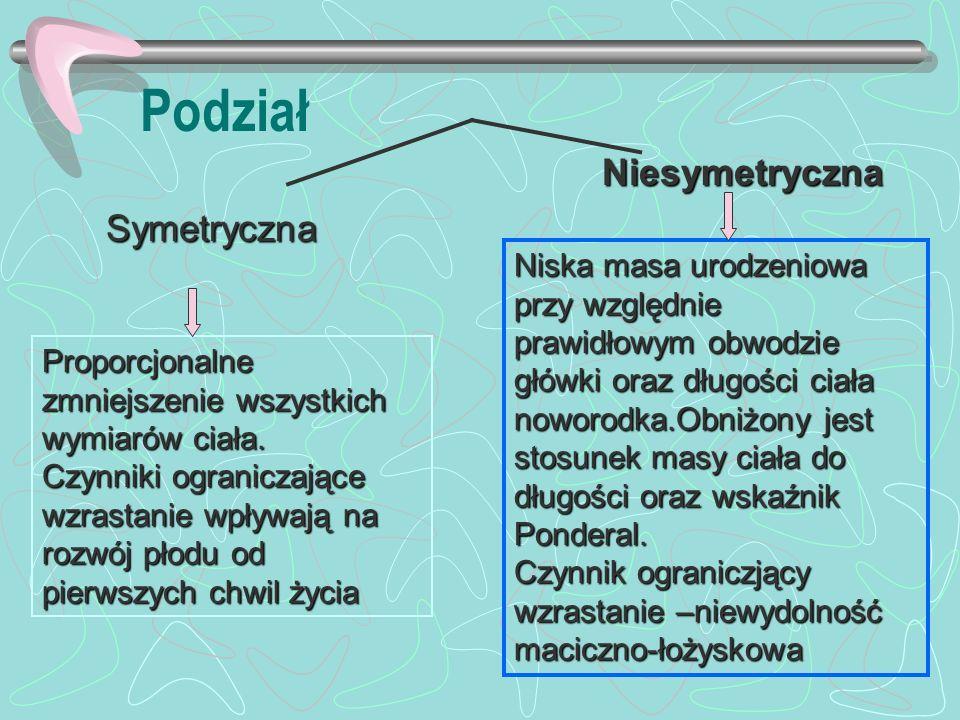 Podział Symetryczna Niesymetryczna Niska masa urodzeniowa przy względnie prawidłowym obwodzie główki oraz długości ciała noworodka.Obniżony jest stosu