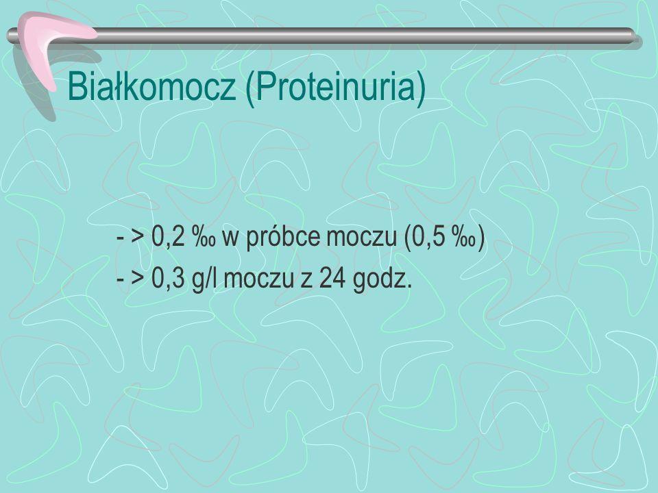 Białkomocz (Proteinuria) - > 0,2 w próbce moczu (0,5 ) - > 0,3 g/l moczu z 24 godz.