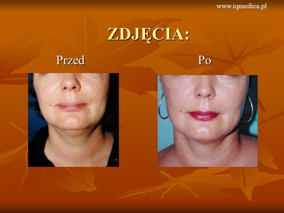 PrzedPo ZDJĘCIA: www.iqmedica.pl