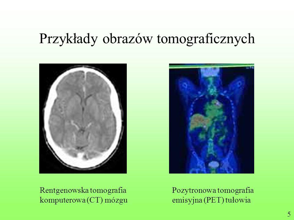 Przykłady obrazów tomograficznych Rentgenowska tomografia komputerowa (CT) mózgu Pozytronowa tomografia emisyjna (PET) tułowia 5
