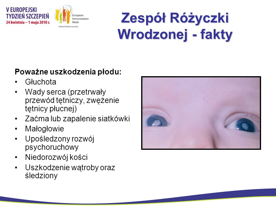 Zespół Różyczki Wrodzonej - fakty Poważne uszkodzenia płodu: Głuchota Wady serca (przetrwały przewód tętniczy, zwężenie tętnicy płucnej) Zaćma lub zap
