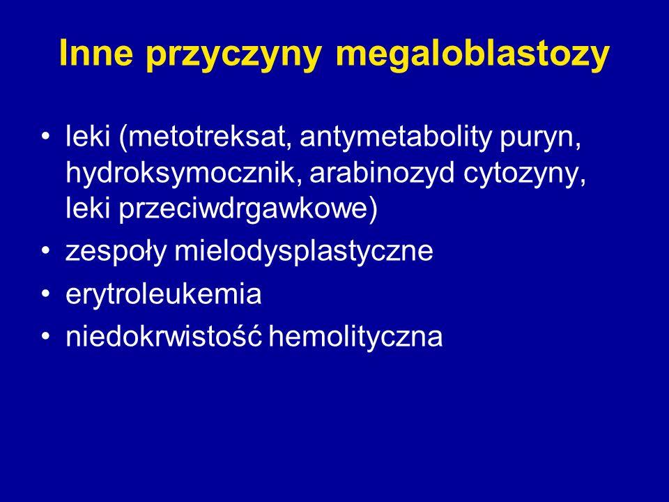 Inne przyczyny megaloblastozy leki (metotreksat, antymetabolity puryn, hydroksymocznik, arabinozyd cytozyny, leki przeciwdrgawkowe) zespoły mielodyspl