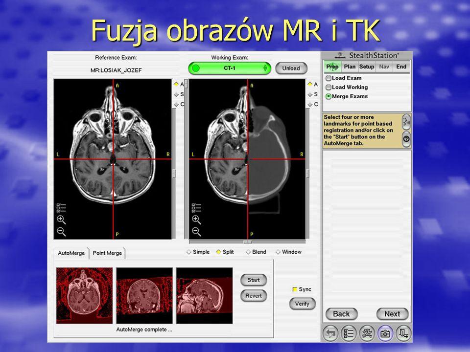 Fuzja obrazów MR i TK
