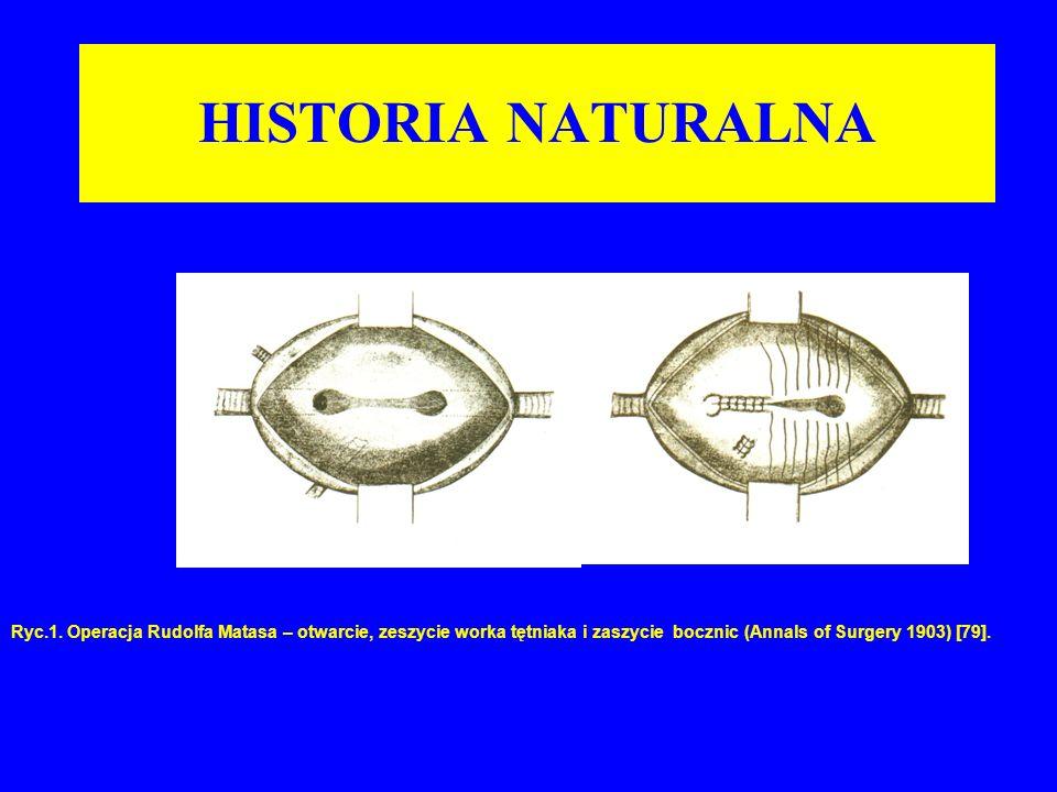 HISTORIA NATURALNA Ryc.1. Operacja Rudolfa Matasa – otwarcie, zeszycie worka tętniaka i zaszycie bocznic (Annals of Surgery 1903) [79].