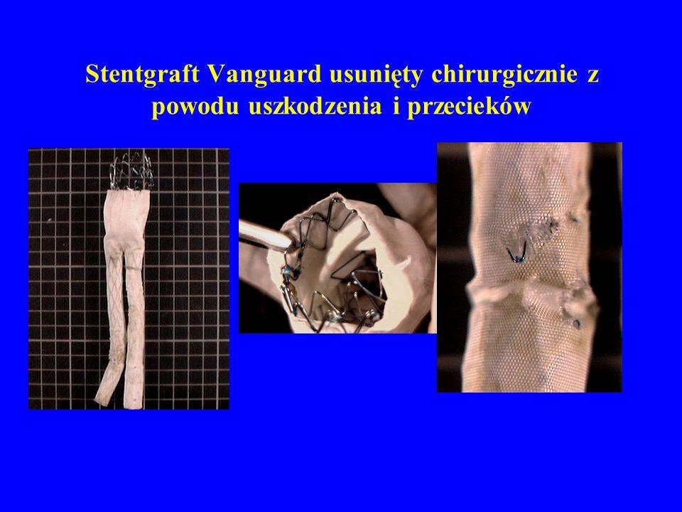 Stentgraft Vanguard usunięty chirurgicznie z powodu uszkodzenia i przecieków