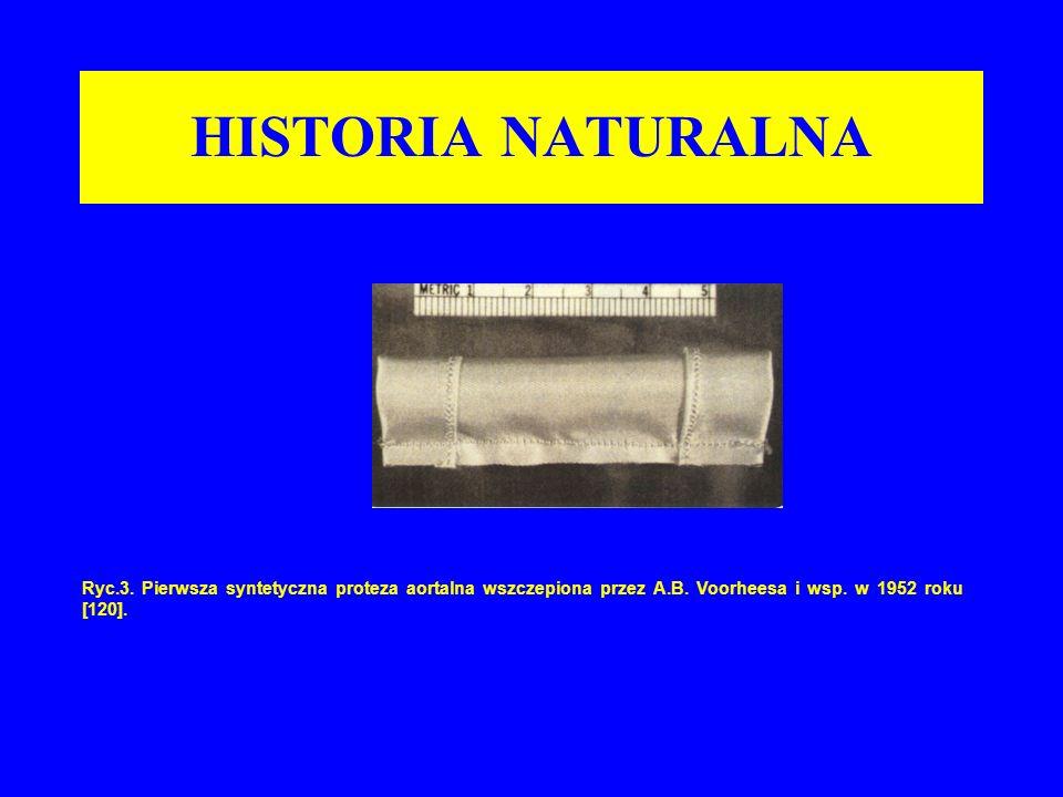Ryc.3. Pierwsza syntetyczna proteza aortalna wszczepiona przez A.B. Voorheesa i wsp. w 1952 roku [120]. HISTORIA NATURALNA