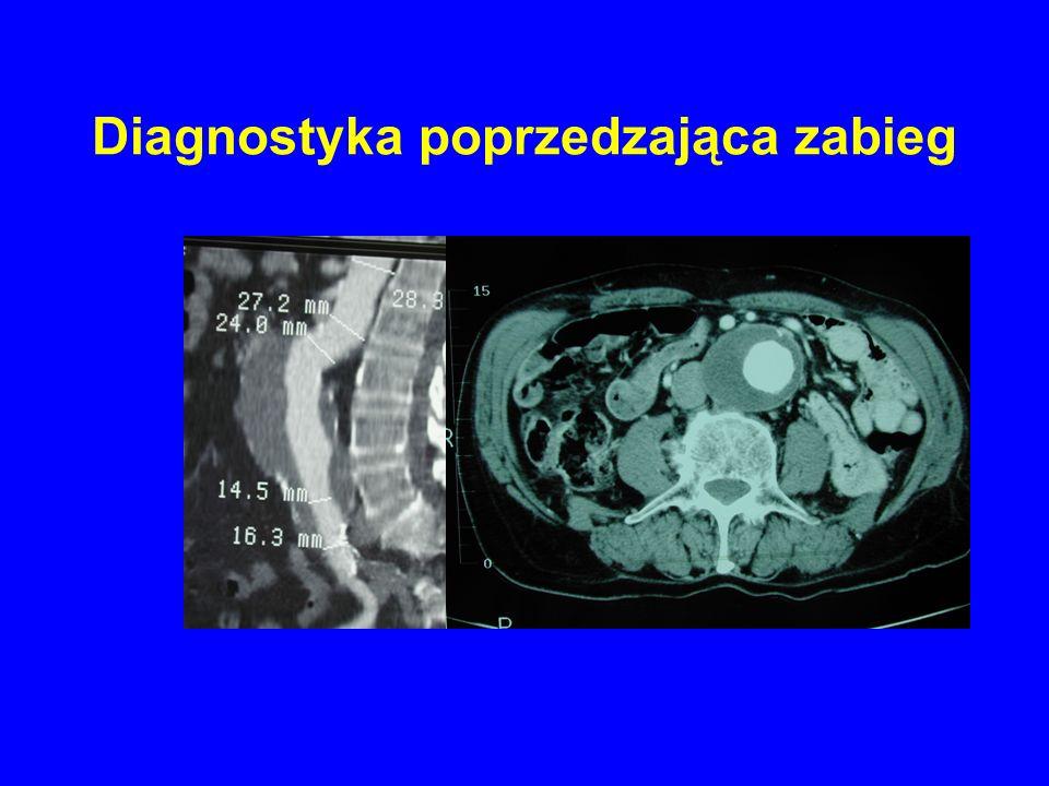 Odsetek reinterwencji w zależności od typu stentgraftu.
