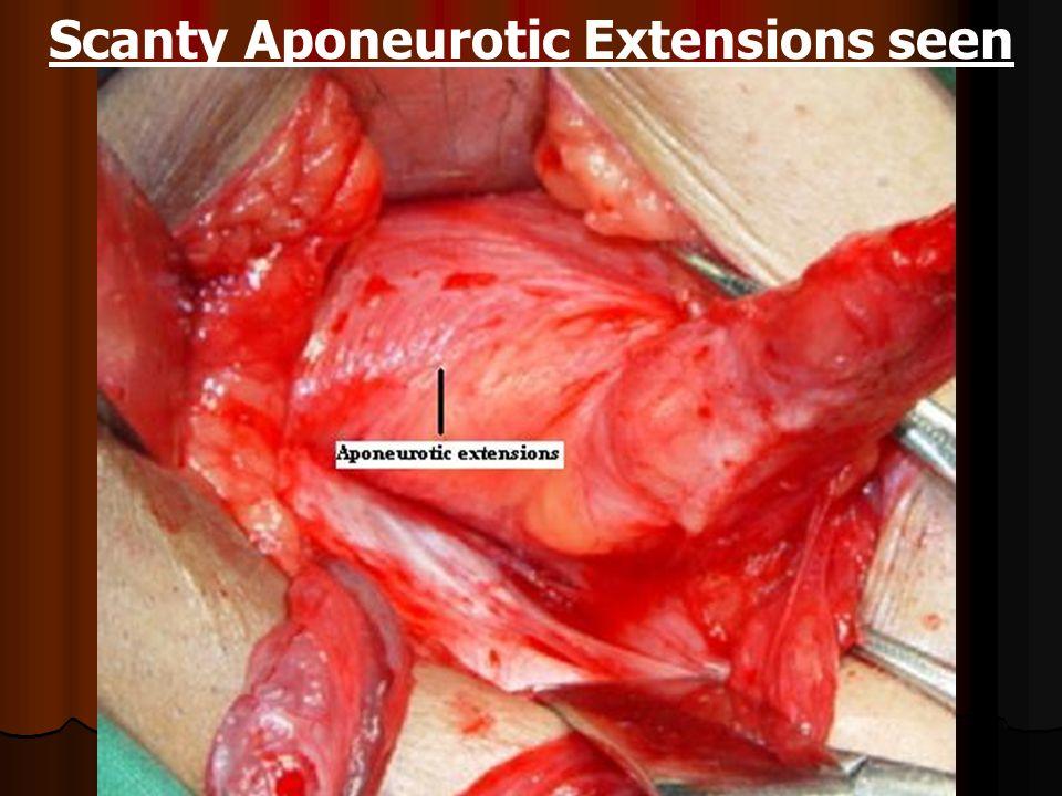 Trnsversus Abdominis Aponeurotic Arch sending Aponeurotic Extensions