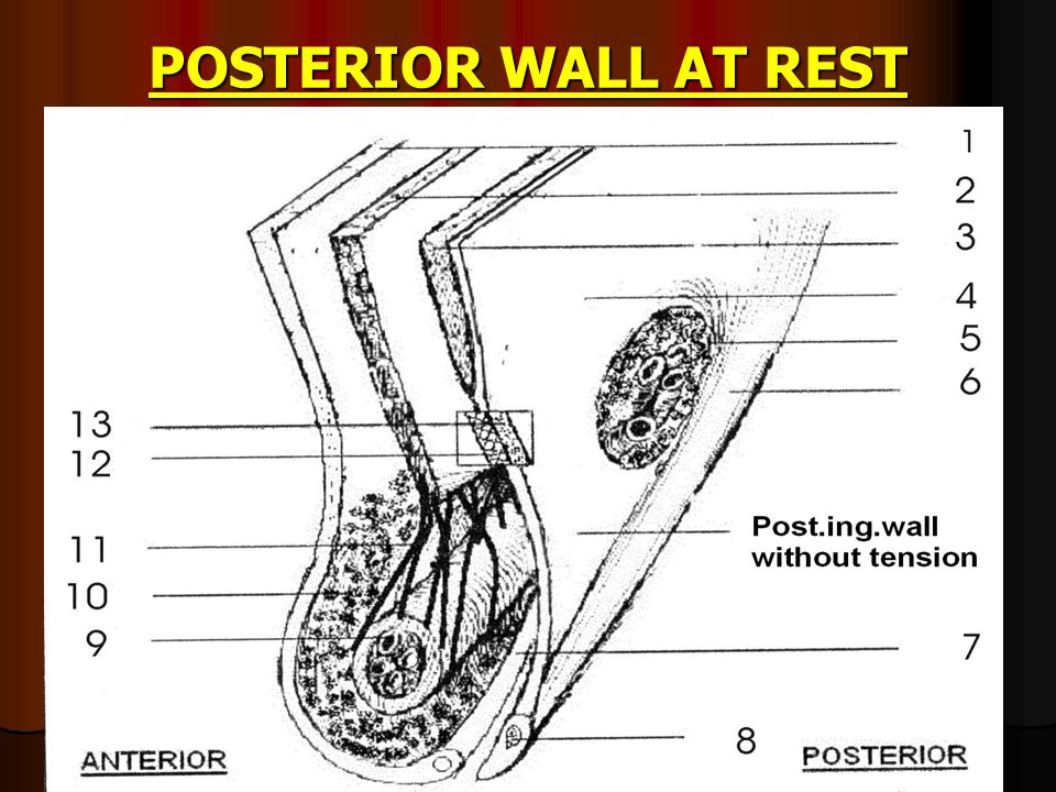 POSTERIOR WALL The posterior inguinal wall is composed of two layers. 1] The transversalis fascia & The posterior inguinal wall is composed of two lay