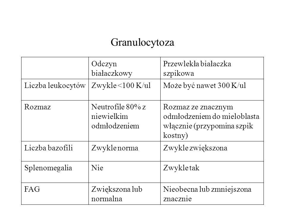 Granulocytoza Odczyn białaczkowy Przewlekła białaczka szpikowa Liczba leukocytówZwykle <100 K/ulMoże być nawet 300 K/ul RozmazNeutrofile 80% z niewiel