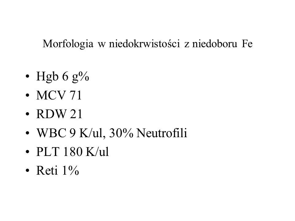 Morfologia w niedokrwistości z niedoboru Fe Hgb 6 g% MCV 71 RDW 21 WBC 9 K/ul, 30% Neutrofili PLT 180 K/ul Reti 1%