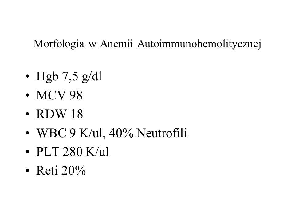 Morfologia w Anemii Autoimmunohemolitycznej Hgb 7,5 g/dl MCV 98 RDW 18 WBC 9 K/ul, 40% Neutrofili PLT 280 K/ul Reti 20%