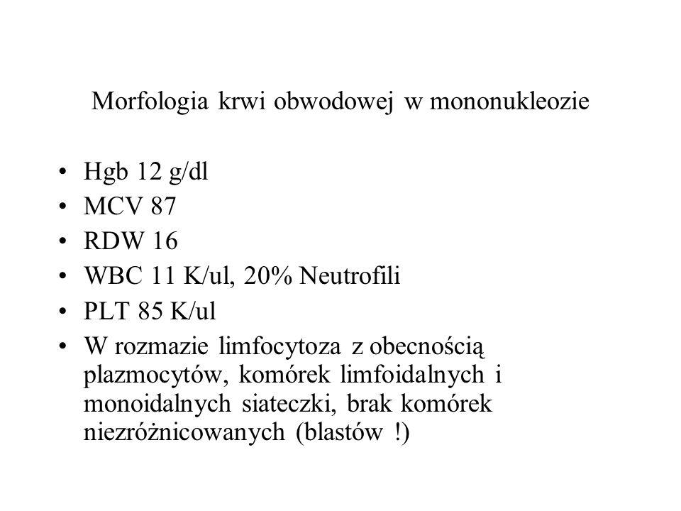 Morfologia krwi obwodowej w mononukleozie Hgb 12 g/dl MCV 87 RDW 16 WBC 11 K/ul, 20% Neutrofili PLT 85 K/ul W rozmazie limfocytoza z obecnością plazmo