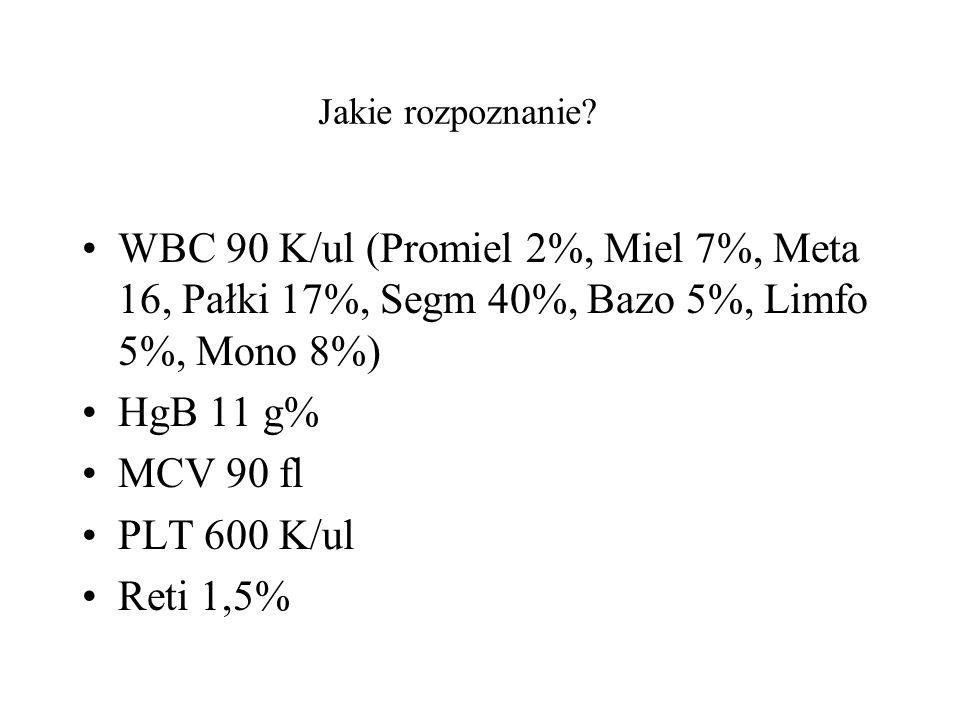 Jakie rozpoznanie? WBC 90 K/ul (Promiel 2%, Miel 7%, Meta 16, Pałki 17%, Segm 40%, Bazo 5%, Limfo 5%, Mono 8%) HgB 11 g% MCV 90 fl PLT 600 K/ul Reti 1