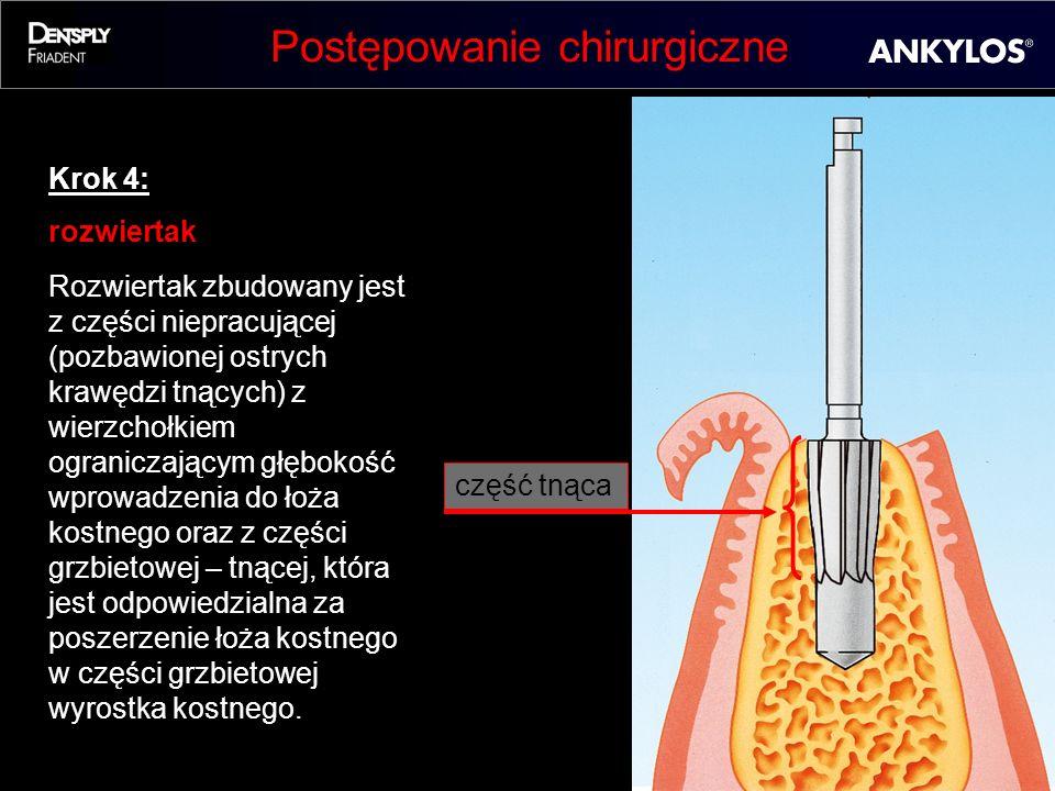 Postępowanie chirurgiczne Krok 4: rozwiertak Rozwiertak zbudowany jest z części niepracującej (pozbawionej ostrych krawędzi tnących) z wierzchołkiem o