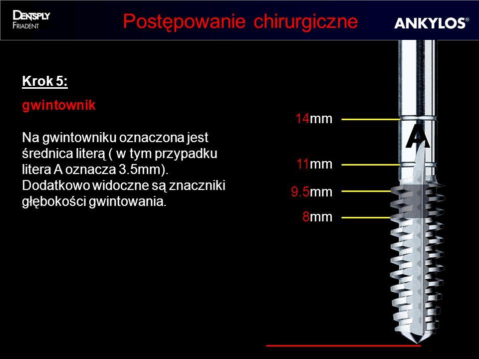 Postępowanie chirurgiczne Krok 5: gwintownik Na gwintowniku oznaczona jest średnica literą ( w tym przypadku litera A oznacza 3.5mm). Dodatkowo widocz