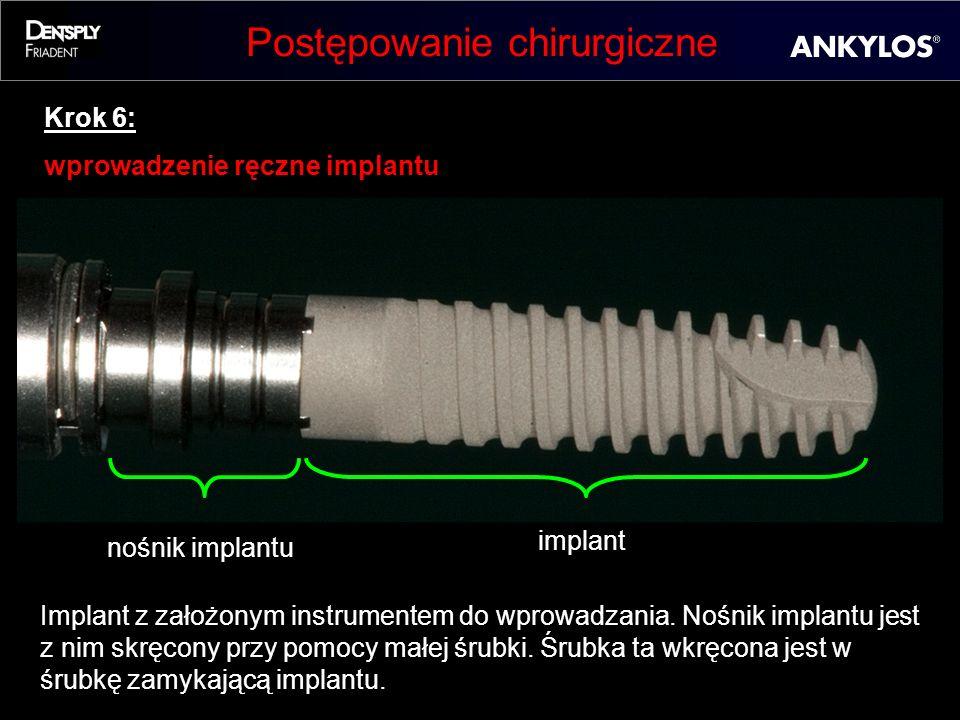 Postępowanie chirurgiczne Krok 6: wprowadzenie ręczne implantu Implant z założonym instrumentem do wprowadzania. Nośnik implantu jest z nim skręcony p