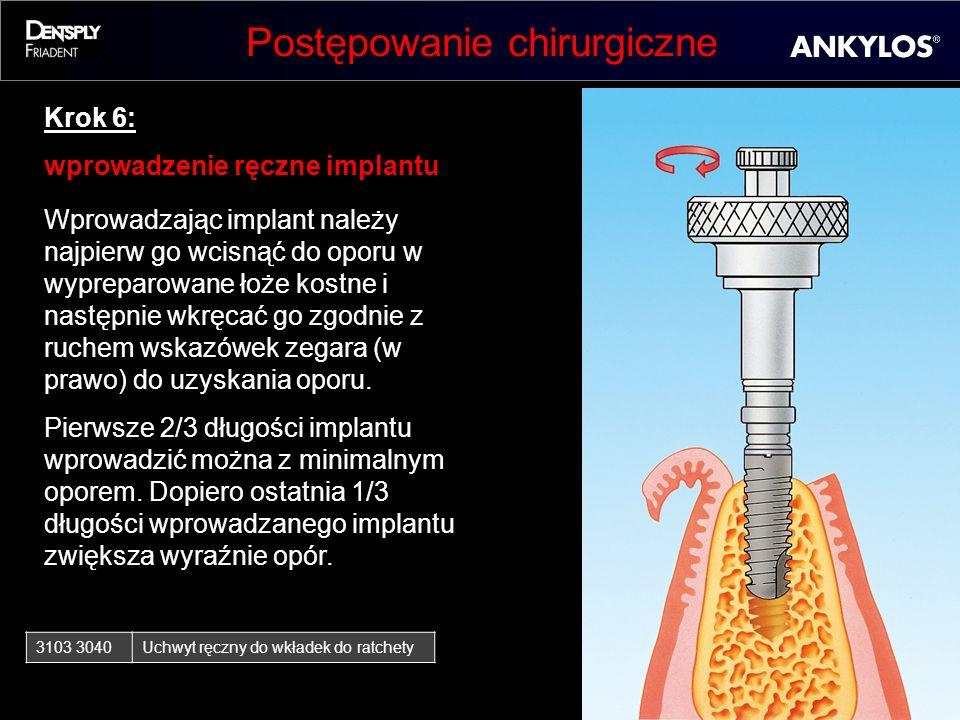Postępowanie chirurgiczne Krok 6: wprowadzenie ręczne implantu Wprowadzając implant należy najpierw go wcisnąć do oporu w wypreparowane łoże kostne i