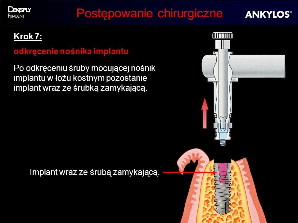Postępowanie chirurgiczne Krok 7: odkręcenie nośnika implantu Po odkręceniu śruby mocującej nośnik implantu w łożu kostnym pozostanie implant wraz ze