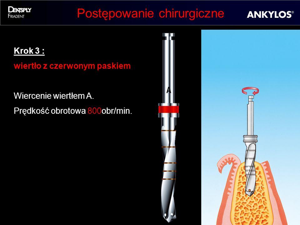 Postępowanie chirurgiczne Krok 3 : wiertło z czerwonym paskiem Wiercenie wiertłem A. Prędkość obrotowa 800obr/min.