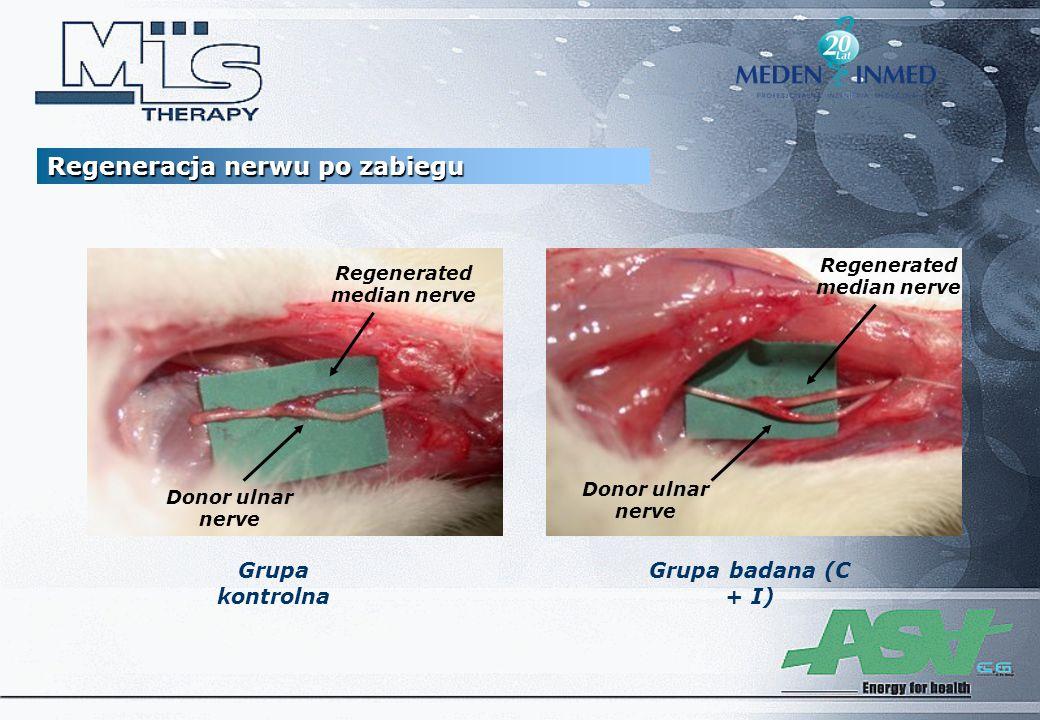 Regeneracja nerwu po zabiegu Grupa kontrolna Grupa badana (C + I) Regenerated median nerve Donor ulnar nerve Regenerated median nerve
