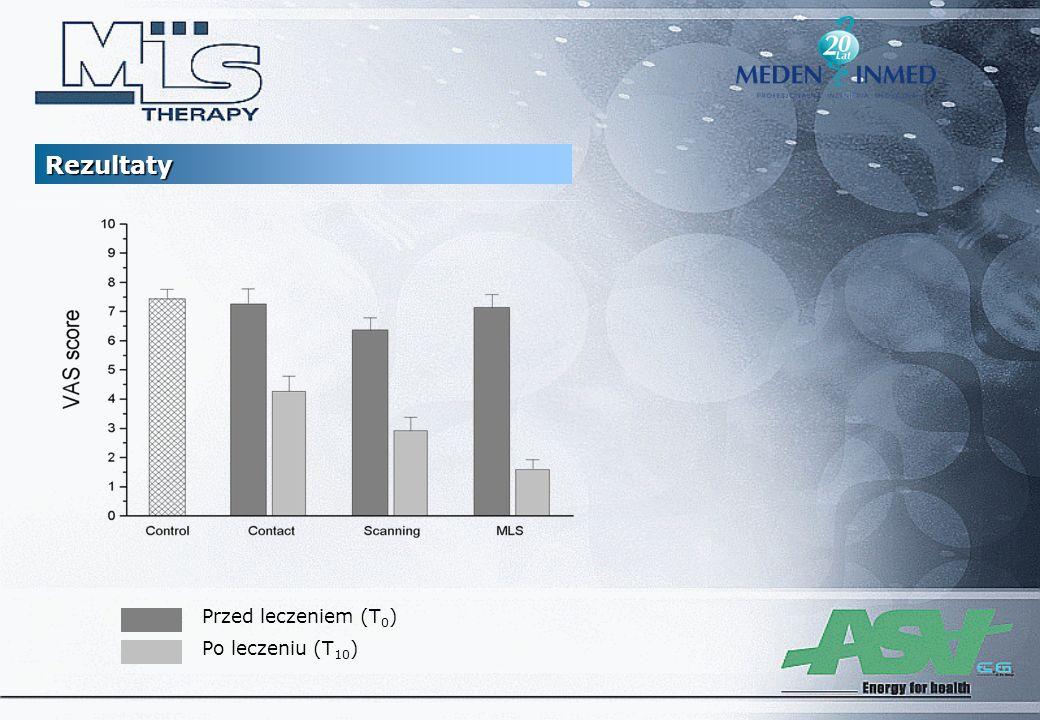 Przed leczeniem (T 0 ) Po leczeniu (T 10 ) Rezultaty