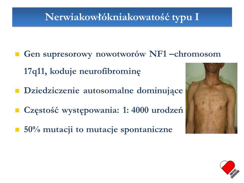 Nerwiakowłókniakowatość typu I Gen supresorowy nowotworów NF1 –chromosom 17q11, koduje neurofibrominę Dziedziczenie autosomalne dominujące Częstość wy