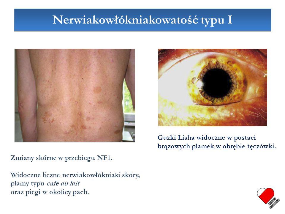 Zmiany skórne w przebiegu NF1. Widoczne liczne nerwiakowłókniaki skóry, plamy typu cafe au lait oraz piegi w okolicy pach. Guzki Lisha widoczne w post