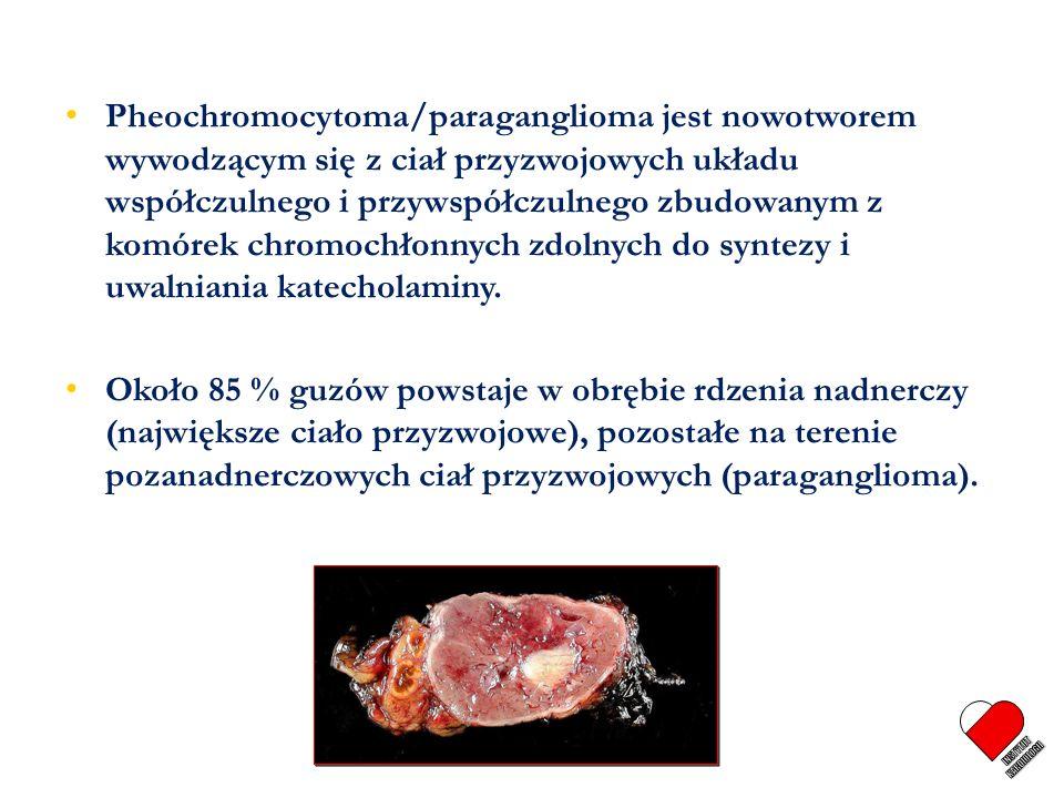 Pheochromocytoma/paraganglioma jest nowotworem wywodzącym się z ciał przyzwojowych układu współczulnego i przywspółczulnego zbudowanym z komórek chrom