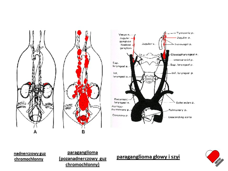 Guz chromochłonny Zasłużona nazwa great mimic Nadmiar katecholamin i/lub nadciśnienie tętnicze Bóle głowy, pocenie się, kołatanie serca, niepokój, ból w klatce piersiowej, bóle brzucha, utrata masy ciała, zaparcia, inne Powikłania Układ sercowo-naczyniowy Współistniejące choroby / zespoły Rak rdzeniasty tarczycy Nerwiakowłókniakowatość Choroba von Hippel Lindau Inne Rak rdzeniasty tarczycy Nerwiakowłókniakowatość Choroba von Hippel Lindau Inne Ucisk / naciekanie struktur przylegających Bardzo duża różnorodność objawów [ > 70 .