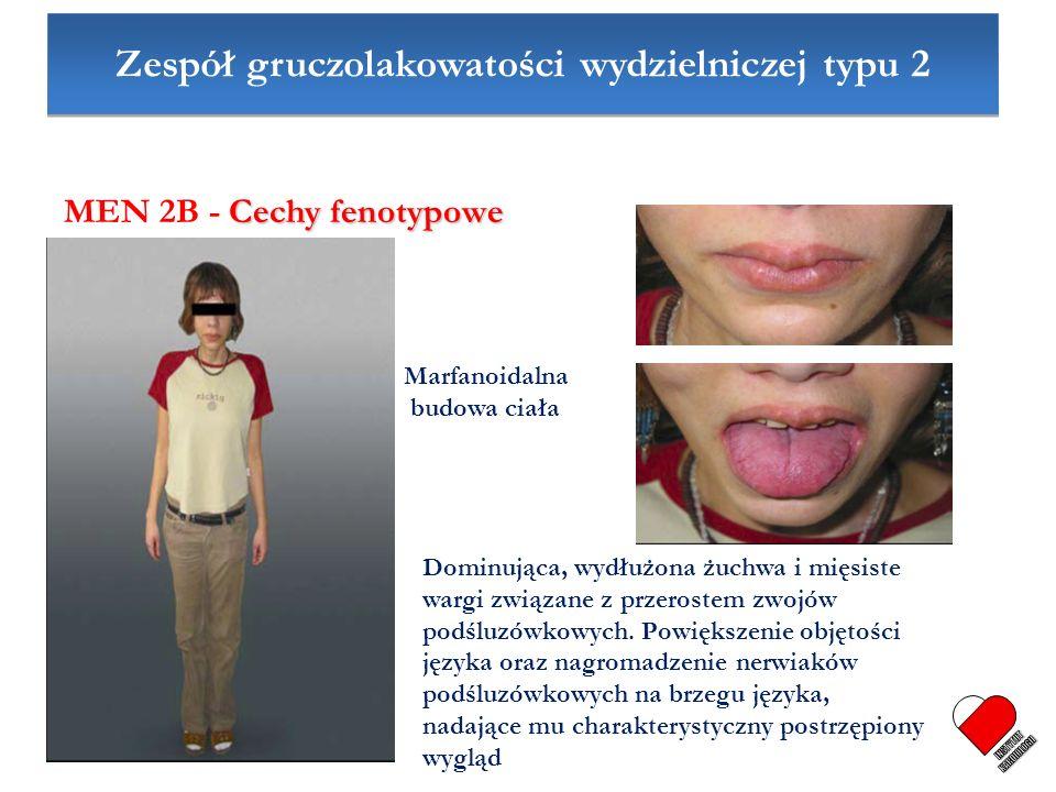 Zespół gruczolakowatości wydzielniczej typu 2 Cechy fenotypowe MEN 2B - Cechy fenotypowe Marfanoidalna budowa ciała Dominująca, wydłużona żuchwa i mię