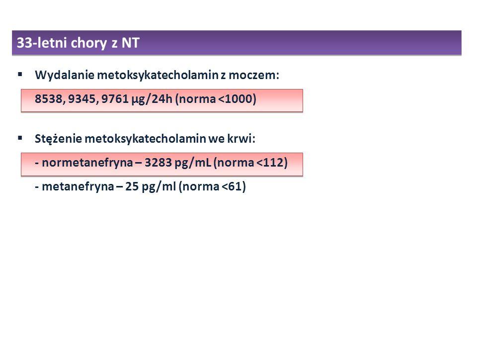 Wydalanie metoksykatecholamin z moczem: 8538, 9345, 9761 µg/24h (norma <1000) Stężenie metoksykatecholamin we krwi: - normetanefryna – 3283 pg/mL (nor