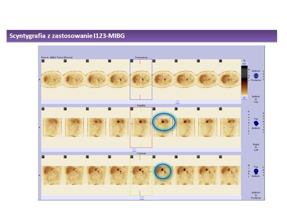 Scyntygrafia z zastosowanie I123-MIBG