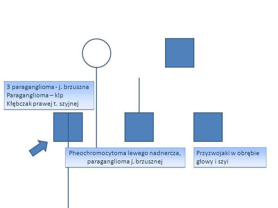 Przyzwojaki w obrębie głowy i szyi Pheochromocytoma lewego nadnercza, paraganglioma j. brzusznej 3 paraganglioma - j. brzuszna Paraganglioma – klp Kłę