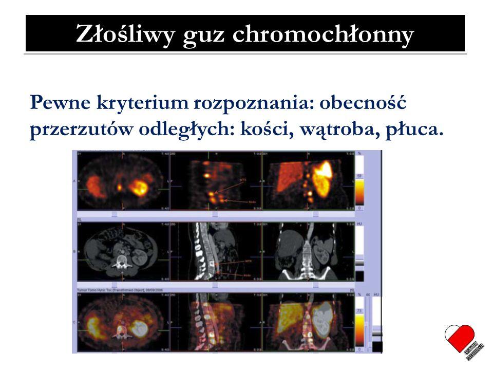 Złośliwy guz chromochłonny Pewne kryterium rozpoznania: obecność przerzutów odległych: kości, wątroba, płuca.