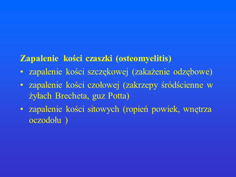 Zapalenie kości czaszki (osteomyelitis) zapalenie kości szczękowej (zakażenie odzębowe) zapalenie kości czołowej (zakrzepy śródścienne w żyłach Breche