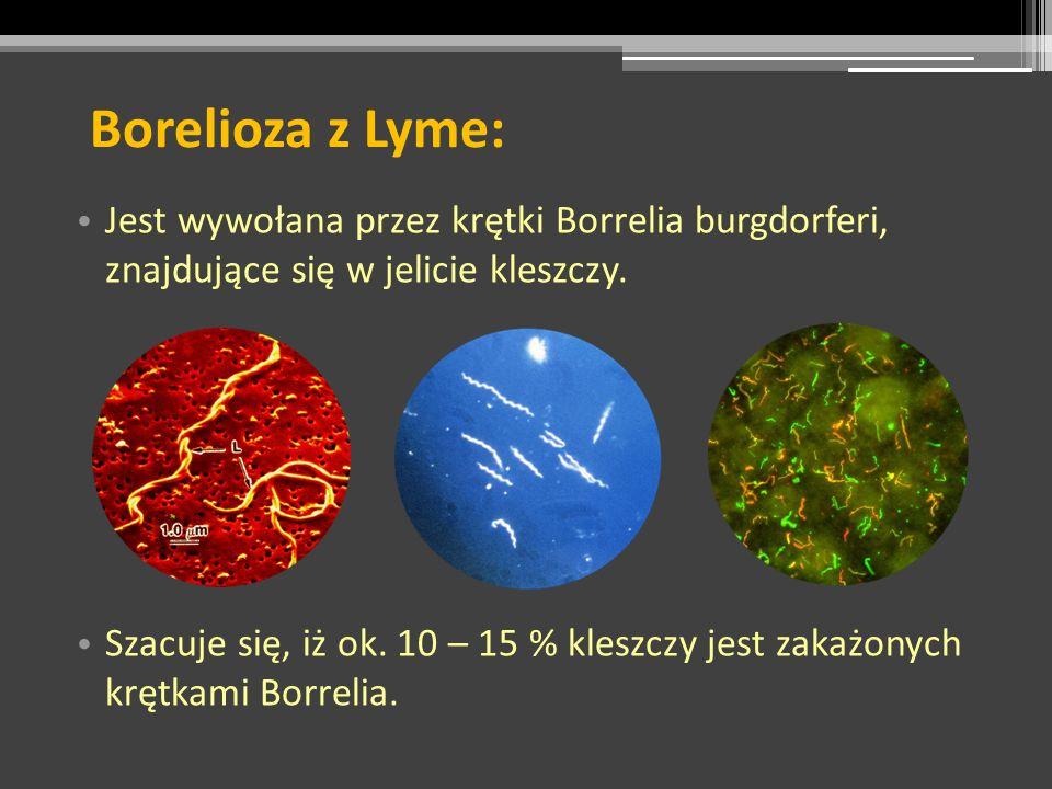 Borelioza z Lyme: Jest wywołana przez krętki Borrelia burgdorferi, znajdujące się w jelicie kleszczy. Szacuje się, iż ok. 10 – 15 % kleszczy jest zaka