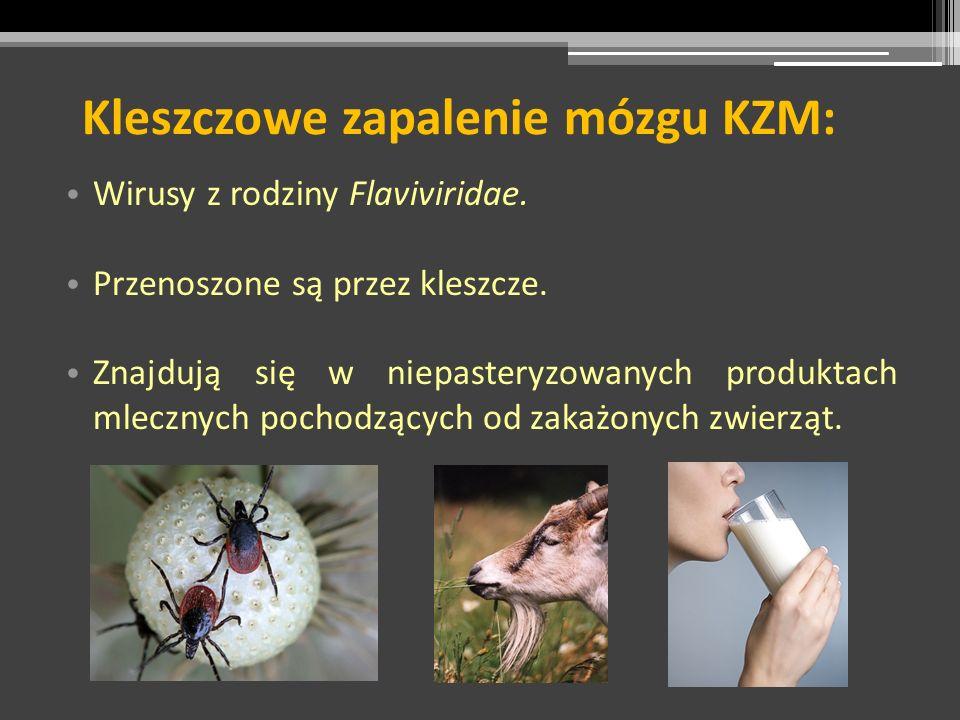 Kleszczowe zapalenie mózgu KZM: Wirusy z rodziny Flaviviridae. Przenoszone są przez kleszcze. Znajdują się w niepasteryzowanych produktach mlecznych p