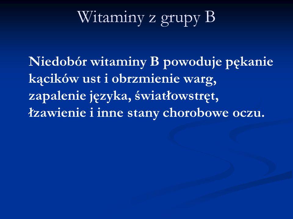 Witaminy z grupy B Niedobór witaminy B powoduje pękanie kącików ust i obrzmienie warg, zapalenie języka, światłowstręt, łzawienie i inne stany chorobo