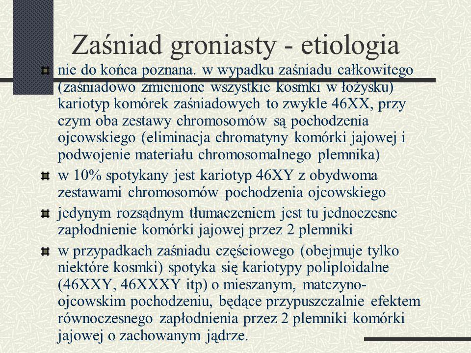 Zaśniad groniasty - etiologia nie do końca poznana.