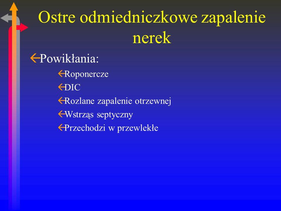 Ostre odmiedniczkowe zapalenie nerek ßPowikłania: ßRoponercze ßDIC ßRozlane zapalenie otrzewnej ßWstrząs septyczny ßPrzechodzi w przewlekłe