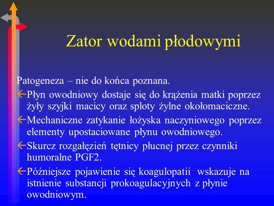 Zator wodami płodowymi Patogeneza – nie do końca poznana.