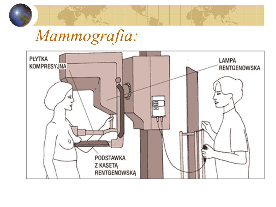 Mammografia: