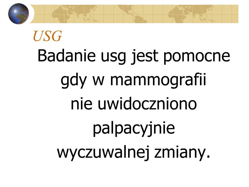 USG Badanie usg jest pomocne gdy w mammografii nie uwidoczniono palpacyjnie wyczuwalnej zmiany.