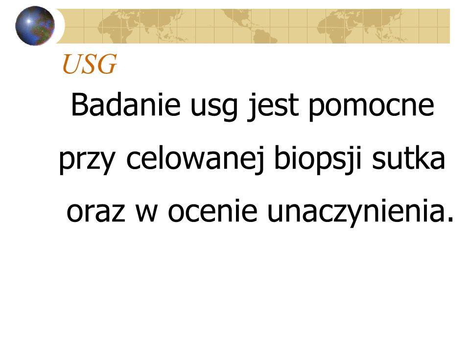 USG Badanie usg jest pomocne przy celowanej biopsji sutka oraz w ocenie unaczynienia.