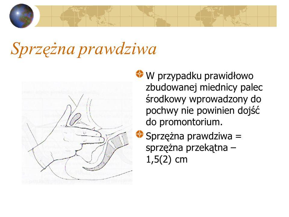 Sprzężna prawdziwa W przypadku prawidłowo zbudowanej miednicy palec środkowy wprowadzony do pochwy nie powinien dojść do promontorium. Sprzężna prawdz