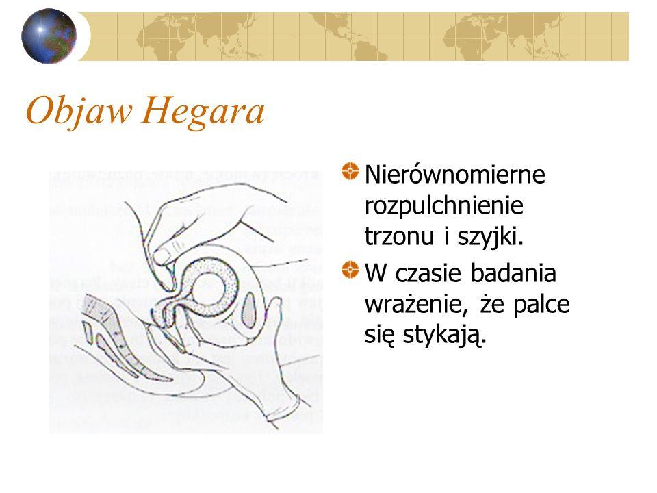 Objaw Hegara Nierównomierne rozpulchnienie trzonu i szyjki. W czasie badania wrażenie, że palce się stykają.