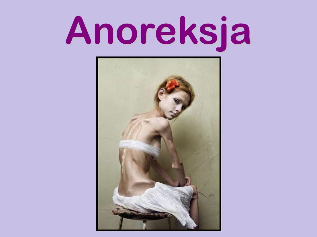 Osoby z anoreksją mają intensywny strach uzyskania masy ciała.